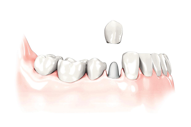 Implantaat op eigen tanden