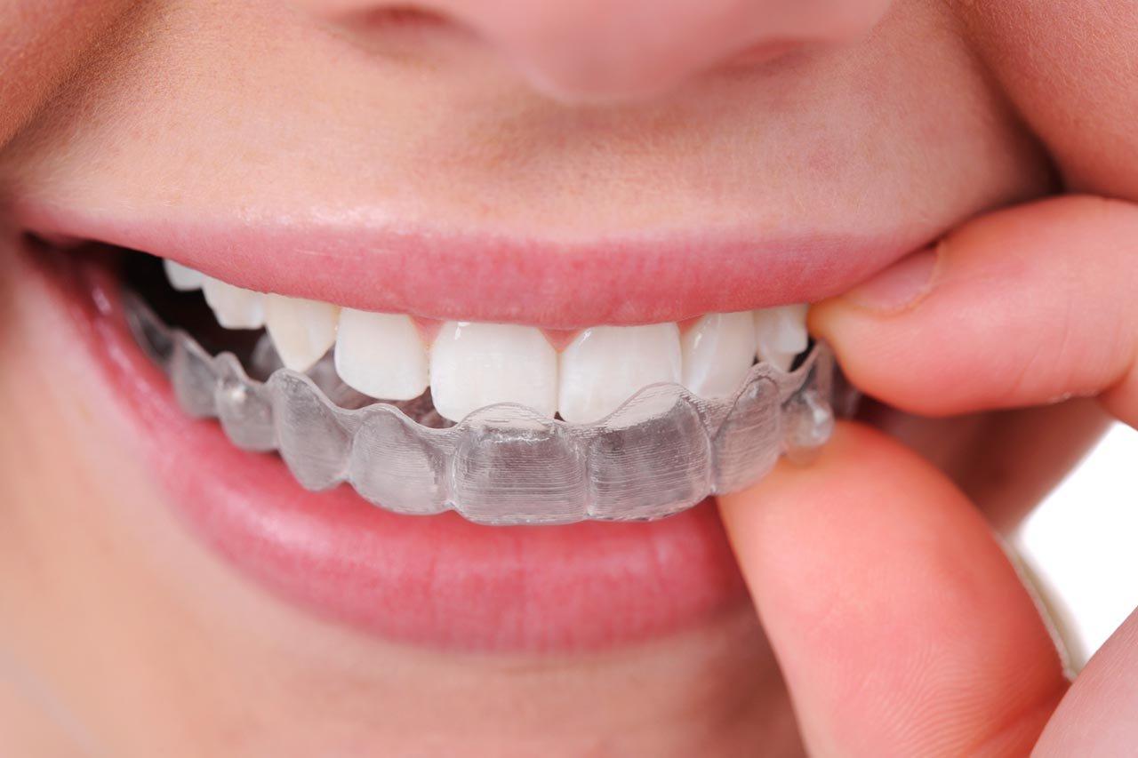 Bleaching van tanden