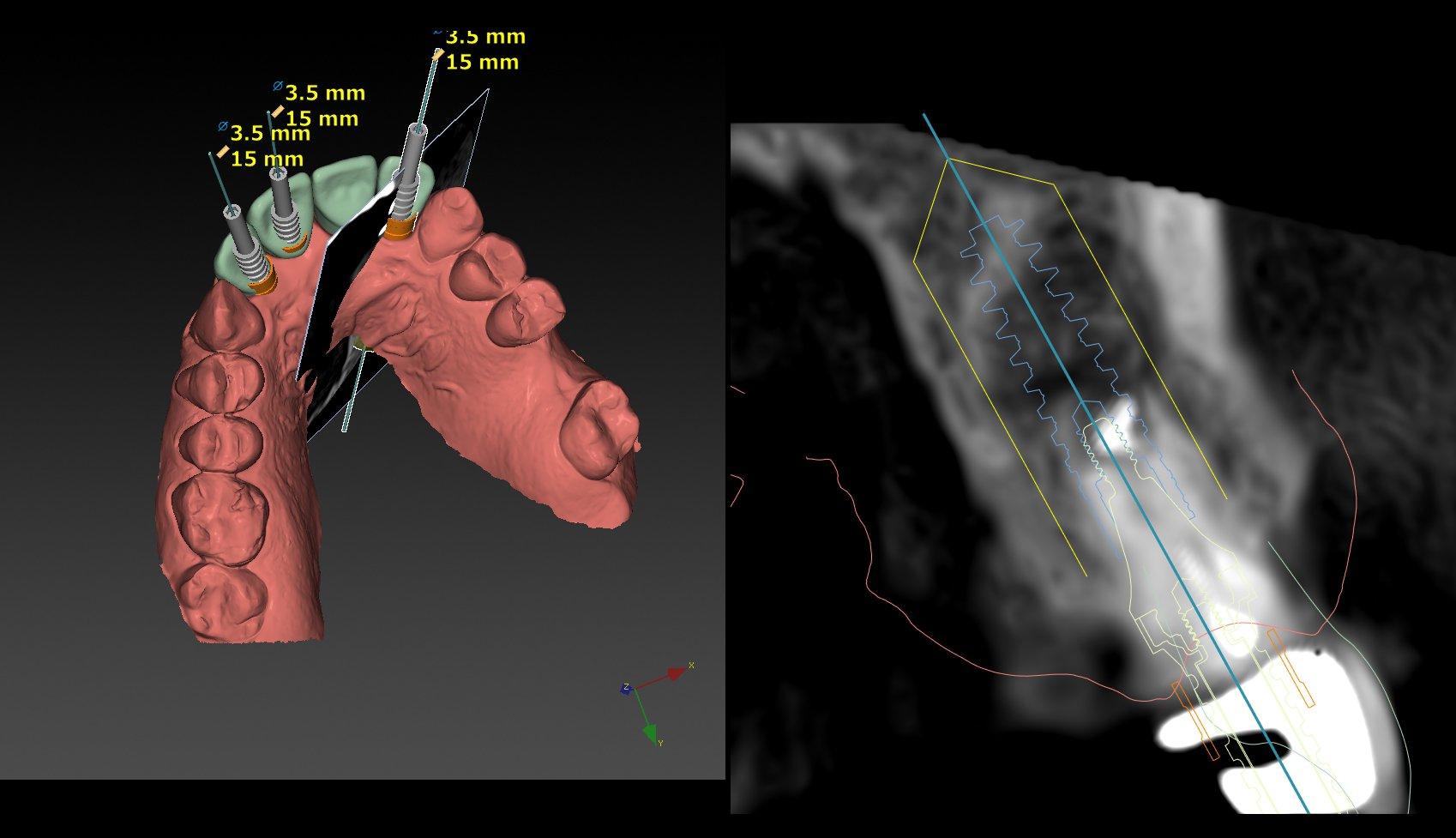 3D röntgenfoto