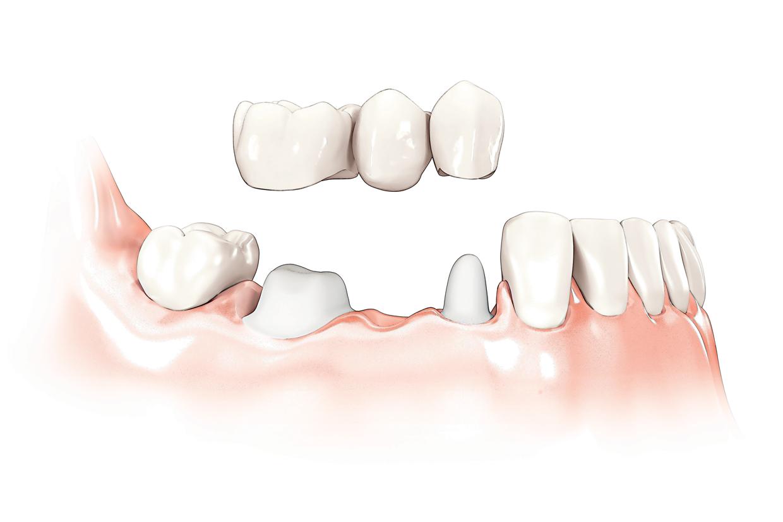Brug op natuurlijke tanden